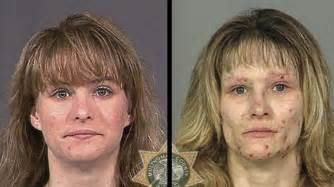 meth mouth aging effects picture 10