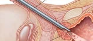Transurethral resection of the prostate turp picture 10
