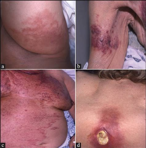 breast cancer skin mets to back pictures picture 7