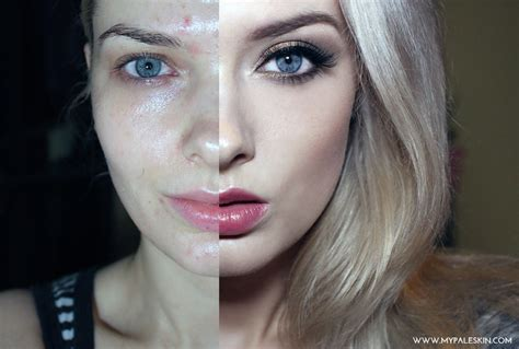 best make-up for acne skin picture 5