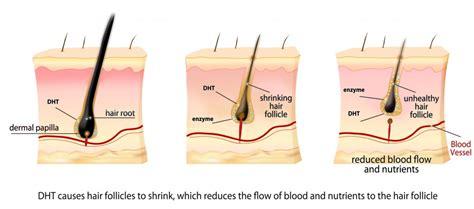 estrogen testosterone hair loss picture 3