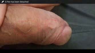 type 1 herpes on the vagina picture 5