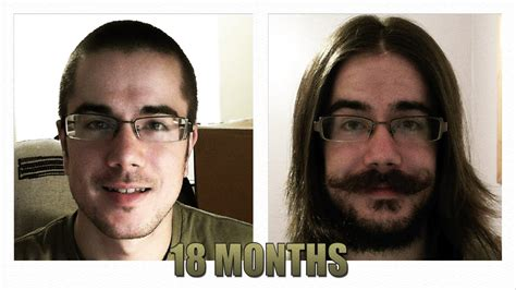 hair growth pictures time lapse picture 3