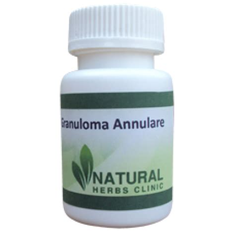 what is the herbal supplement for cyst? picture 4