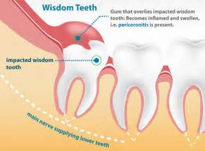 can wisdom teeth cause sinus proems picture 7