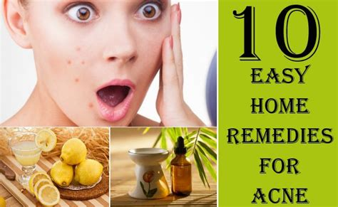 acne remedies picture 11