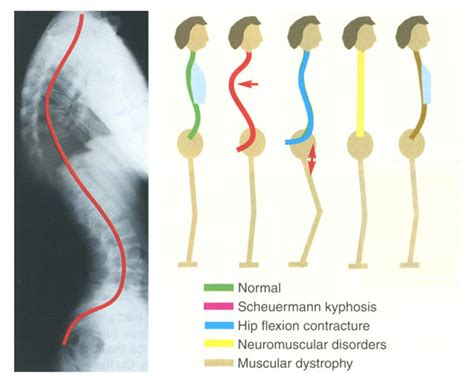 scoliosis back and neck stiffness el disorders picture 12
