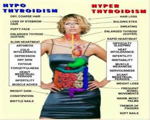 i have hypothyroidism. and a onset of severe picture 6