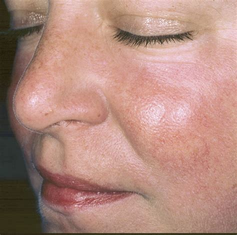 acne rosaea picture 10