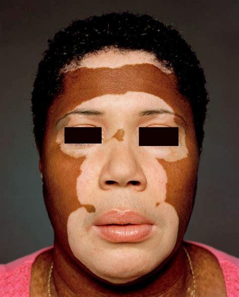 lupus skin picture 11