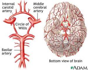 vertebrae problems restricting blood flow to brain picture 2