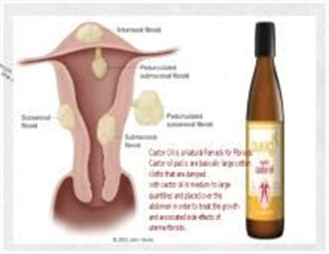 castor oil vaginal tampoon picture 9