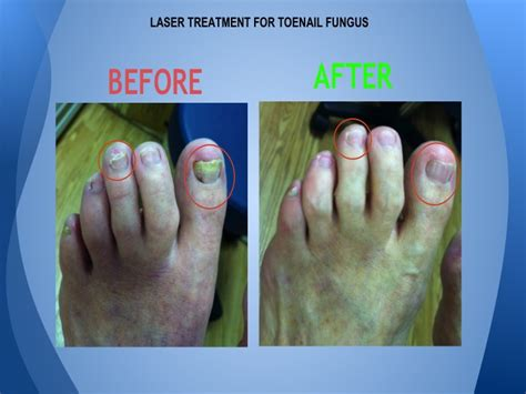 laser treatment nail fungus northern va. picture 1