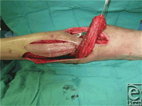 muscle flap surgery picture 7