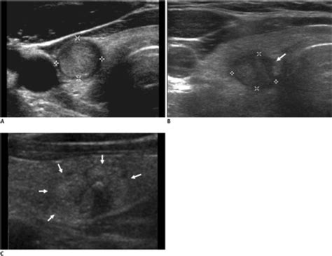 thyroid nodules ill defined margins picture 1