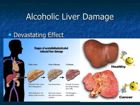 liver failure due to alcohol picture 9