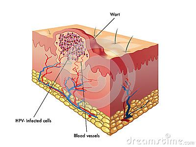 what does a plantar wart look like picture 9