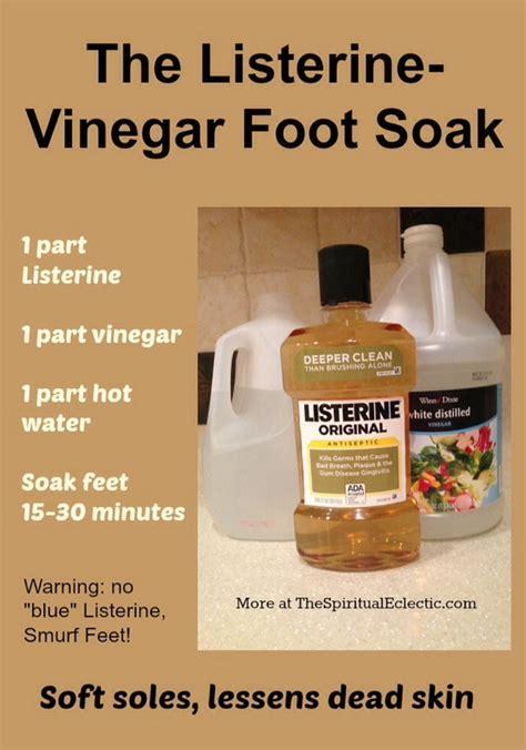 foot soak to remove dead skin picture 2