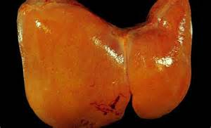 fatty deposits on the liver picture 6