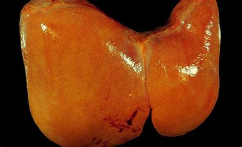 fatty deposits on the liver picture 7