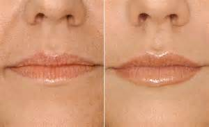 treatment for thin lips mean picture 5