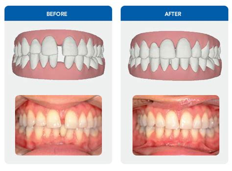 align of h after braces picture 5