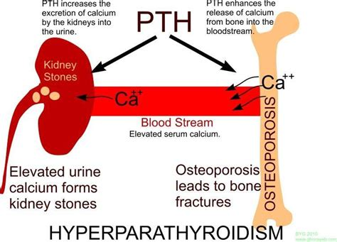 hyperparathyroidism hormone treatment picture 1