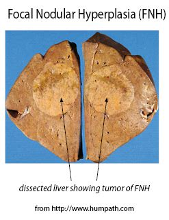 colon cancer and focal lesions in liver picture 7