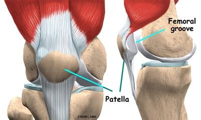 femoral joint pain picture 19
