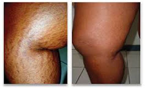 homemade stretch mark remover picture 3