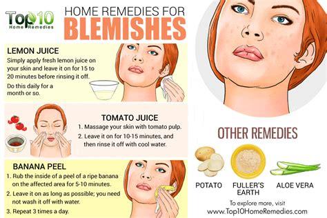 acne treatment aloe free picture 11