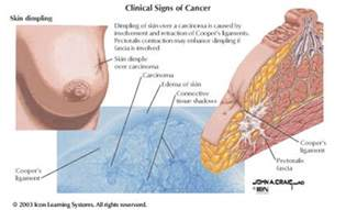 skin tumor charts new mexico picture 2