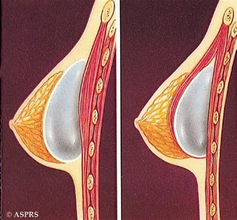 breast augmentation complications picture 3