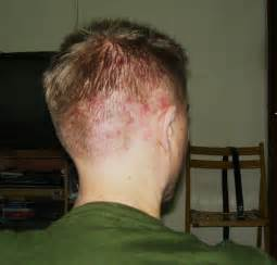 head acne as a symptom of cancer picture 9