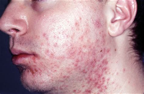acne from hottub picture 15