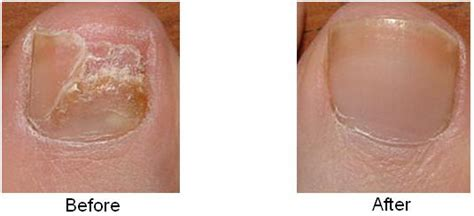laser treatment for nail fungus in oregon picture 5