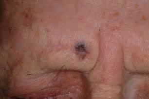 skin cancer face picture 1