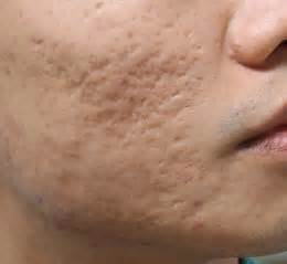 pictures of acne scars picture 10