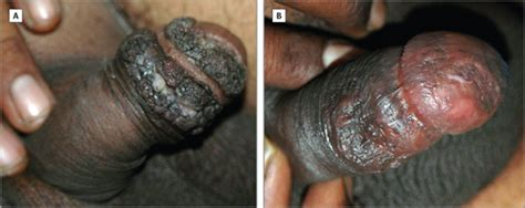 anogenital warts picture 14