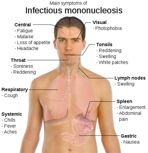 signs & symptoms viral infection picture 17