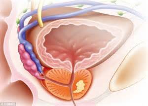 Prostate procedures picture 3