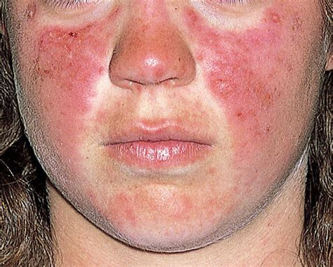 lupus and acne skin problems picture 3