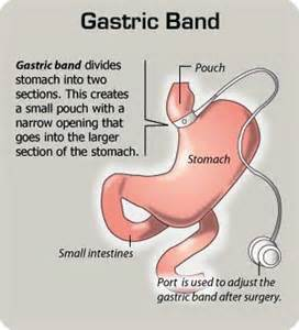 stomach band & lipo picture 9