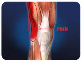 knee pain picture 2