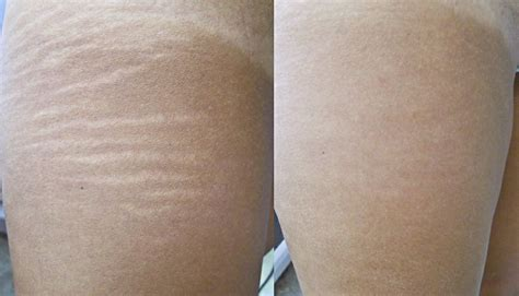 cost to remove stretch mark picture 15