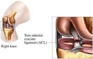 care for muscle tares and sprains picture 17