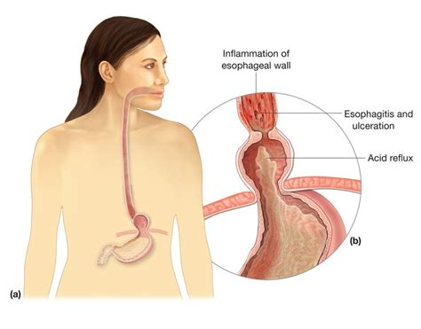 yeast infection information picture 7