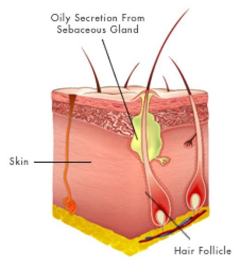 acne prevention picture 1