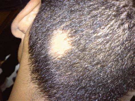 acne on te head picture 10
