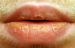 natural healing of exfoliative cheilitis picture 5